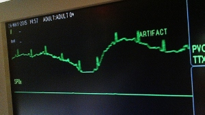 Someone's heart rhythm isn't quite right